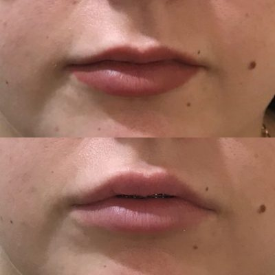 Lip Fillers Before and After Skinovation Townsville