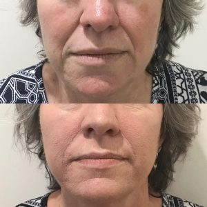 Nasolabial Filler Before and After Skinovation Townsville